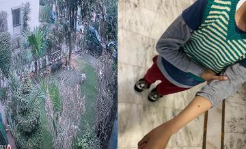 यूपी: गाजियाबाद में आवारा कुत्तों का आतंक, बच्चों-बुजुर्गों पर कर रहे हमला, शिकायत के बावजूद नहीं सुन रहा नगर निगम