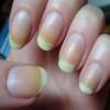Nails, Health Tips
